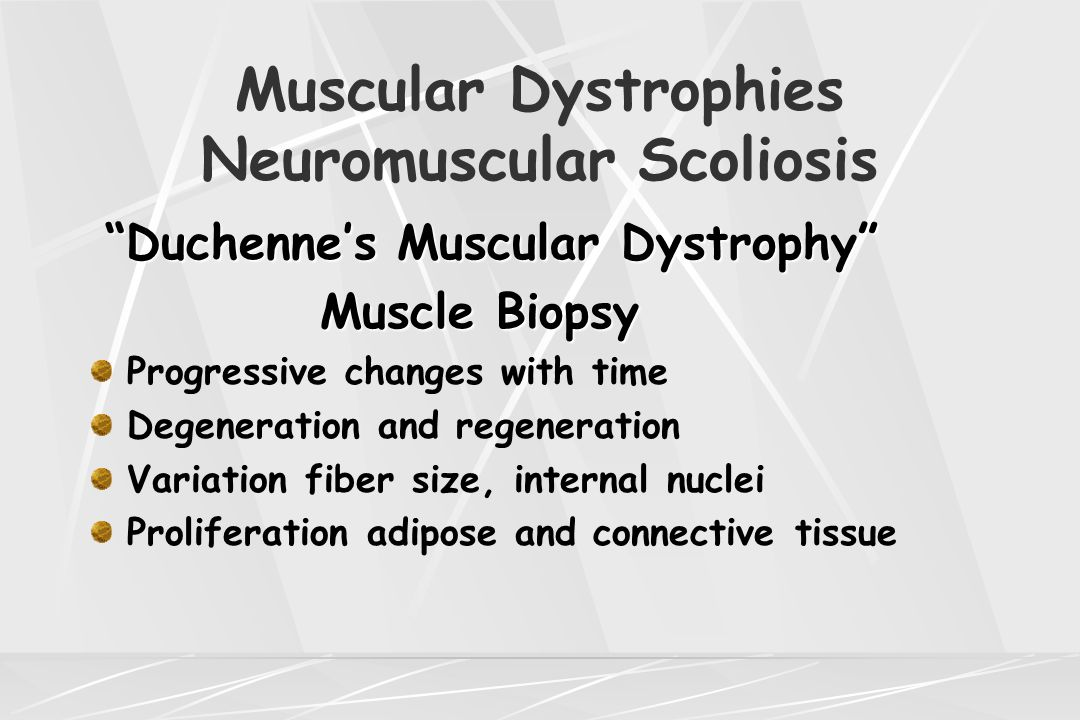 "Muscular Dystrophies Neuromuscular Scoliosis ""Duchenne's Muscular Dystrophy"" Muscle Biopsy Muscle Biopsy Progressive changes with time Degeneration an"