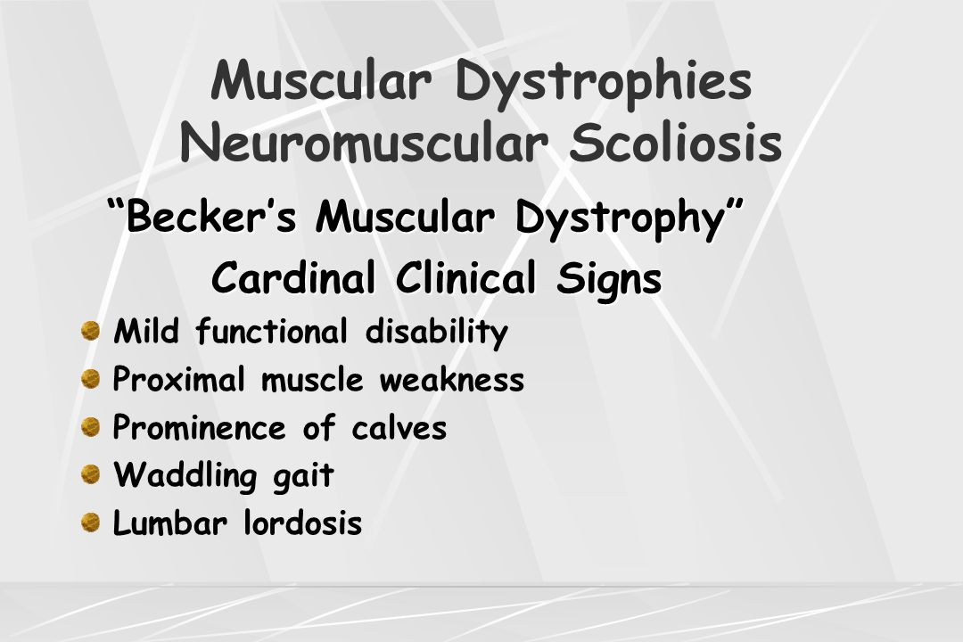 "Muscular Dystrophies Neuromuscular Scoliosis ""Becker's Muscular Dystrophy"" Cardinal Clinical Signs Cardinal Clinical Signs Mild functional disability"
