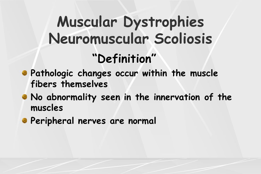 Muscular Dystrophies Neuromuscular Scoliosis Becker's Muscular Dystrophy Similar to Duchenne's but later onset and slower rate of deterioration of muscles Age at presentation usually after 7 years Ambulate into early adult years Pseudohypertrophy of the calves seen Dilated cardiomyopathy seen in high percentage of the patients