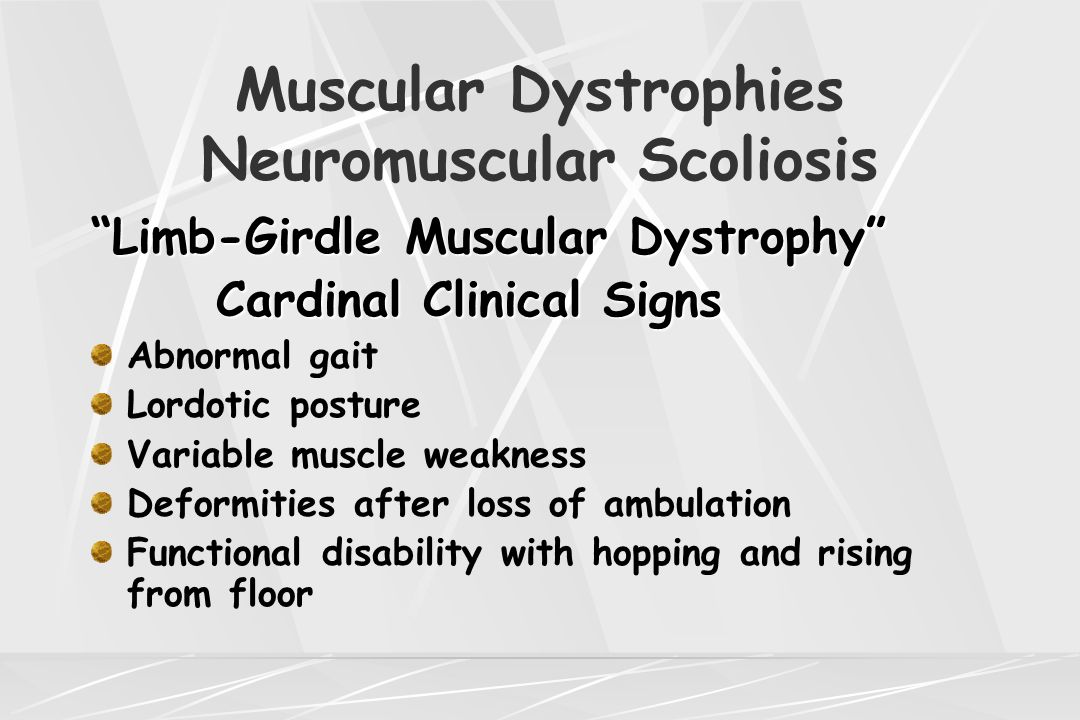 "Muscular Dystrophies Neuromuscular Scoliosis ""Limb-Girdle Muscular Dystrophy"" Cardinal Clinical Signs Cardinal Clinical Signs Abnormal gait Lordotic p"