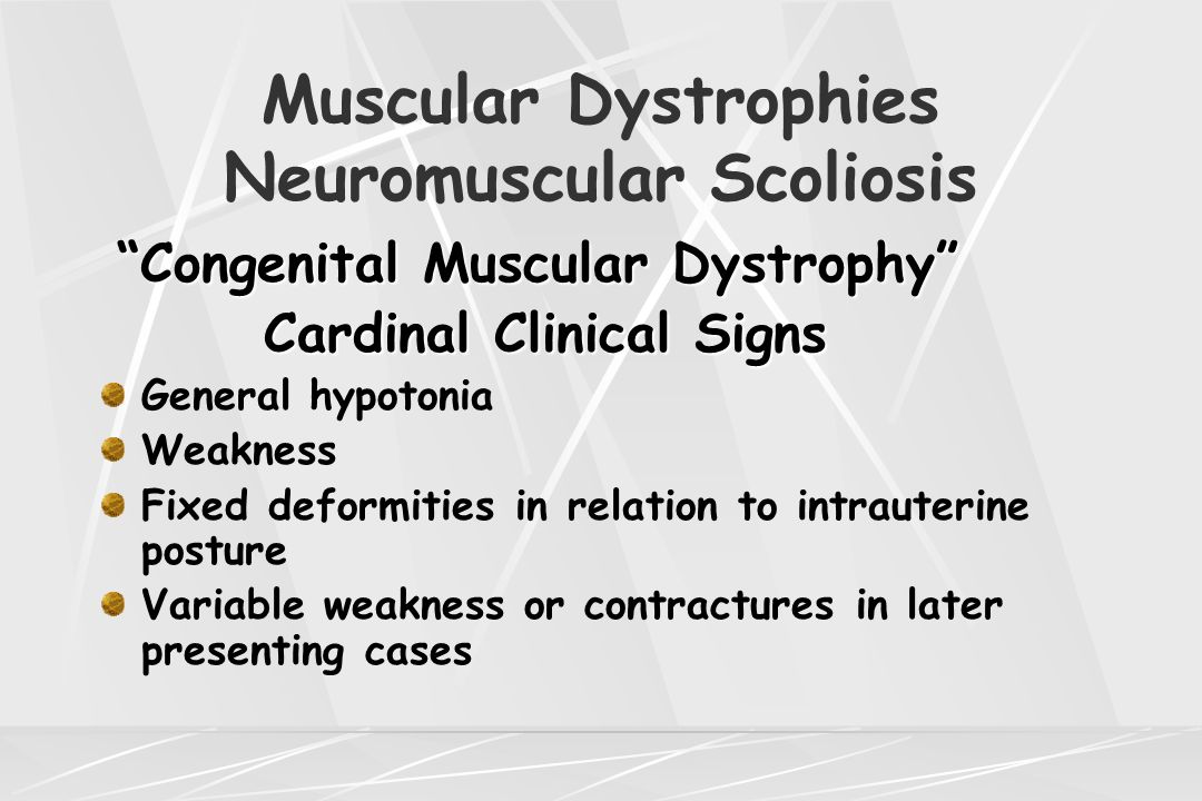 "Muscular Dystrophies Neuromuscular Scoliosis ""Congenital Muscular Dystrophy"" Cardinal Clinical Signs Cardinal Clinical Signs General hypotonia Weaknes"
