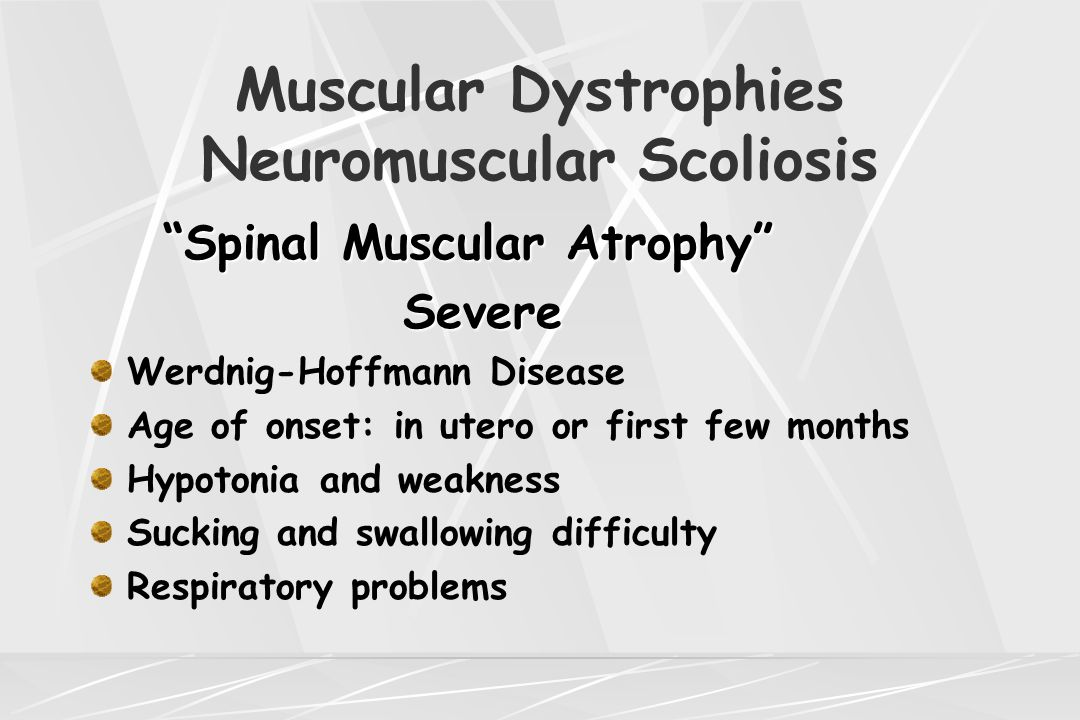 "Muscular Dystrophies Neuromuscular Scoliosis ""Spinal Muscular Atrophy"" Severe Severe Werdnig-Hoffmann Disease Age of onset: in utero or first few mont"