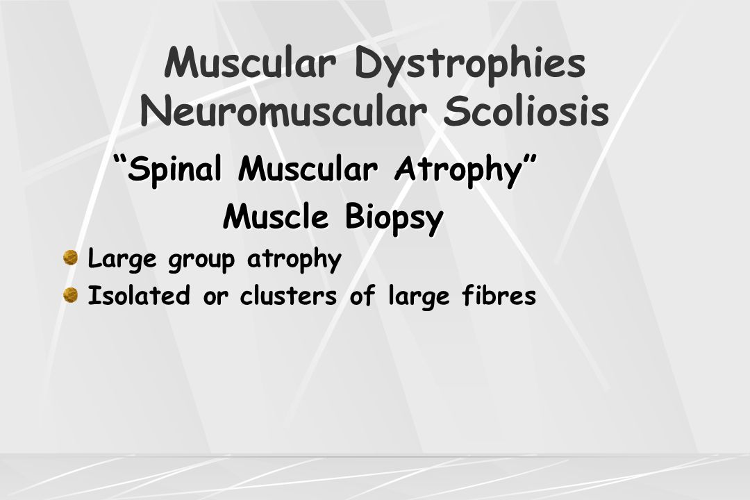 "Muscular Dystrophies Neuromuscular Scoliosis ""Spinal Muscular Atrophy"" Muscle Biopsy Muscle Biopsy Large group atrophy Isolated or clusters of large f"