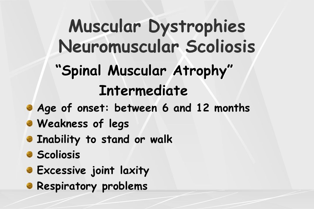 "Muscular Dystrophies Neuromuscular Scoliosis ""Spinal Muscular Atrophy"" Intermediate Intermediate Age of onset: between 6 and 12 months Weakness of leg"