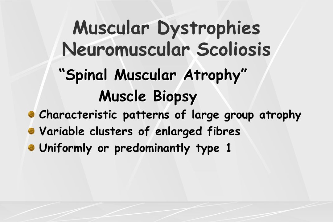 "Muscular Dystrophies Neuromuscular Scoliosis ""Spinal Muscular Atrophy"" Muscle Biopsy Muscle Biopsy Characteristic patterns of large group atrophy Vari"