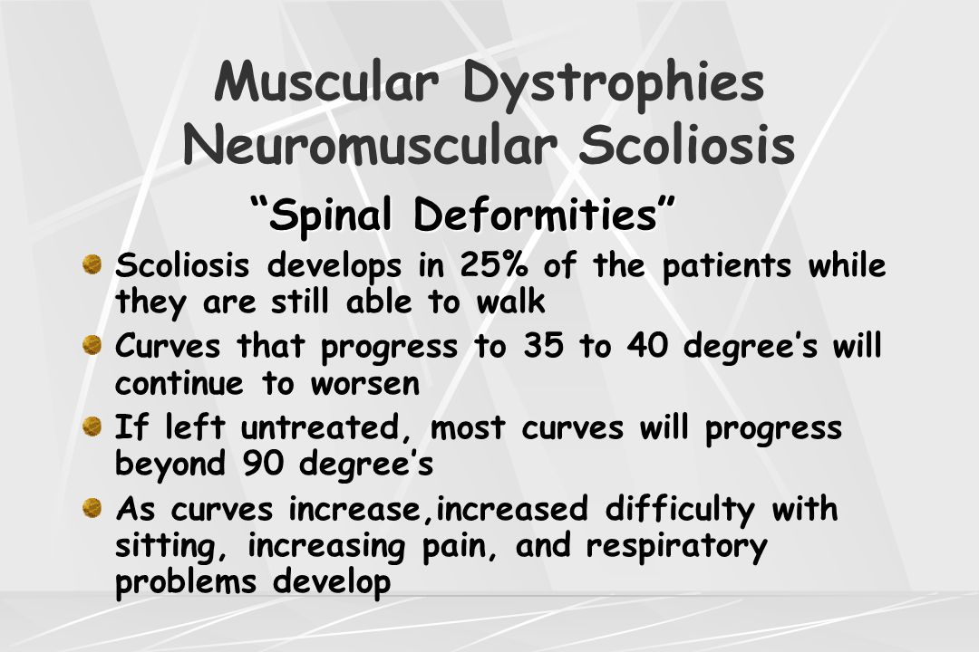 "Muscular Dystrophies Neuromuscular Scoliosis ""Spinal Deformities"" Scoliosis develops in 25% of the patients while they are still able to walk Curves t"