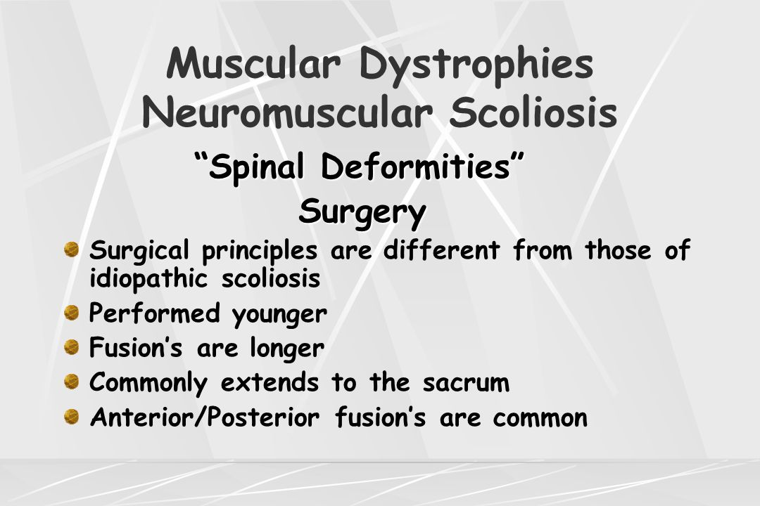 "Muscular Dystrophies Neuromuscular Scoliosis ""Spinal Deformities"" Surgery Surgery Surgical principles are different from those of idiopathic scoliosis"