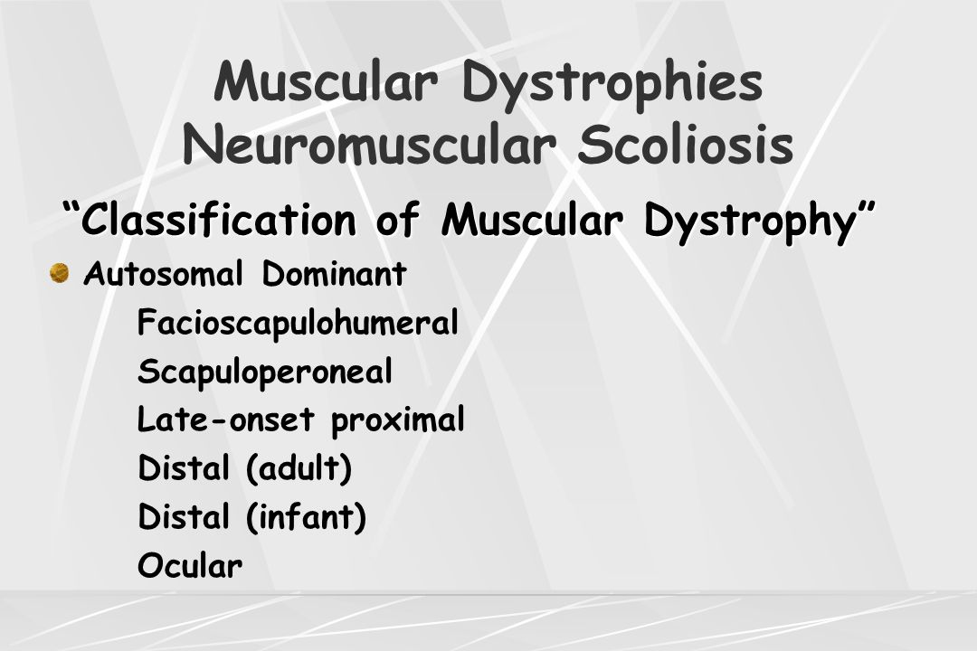 Muscular Dystrophies Neuromuscular Scoliosis Spinal Muscular Atrophy Cardinal Clinical Signs Cardinal Clinical Signs Bell shaped chest Internal rotation of arms: jug handle posture Normal facial movements Absent tendon reflexes Weak cry