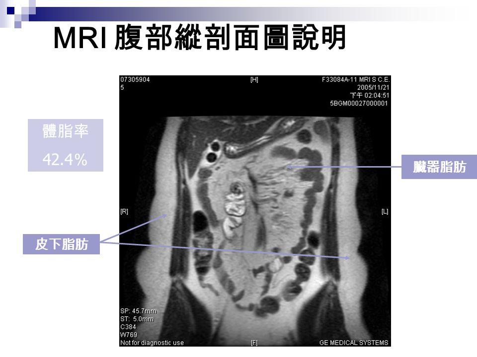 MRI 腹部縱剖面圖說明 臟器脂肪 皮下脂肪 體脂率 42.4 %