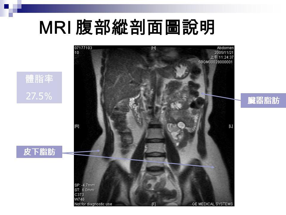 MRI 腹部縱剖面圖說明 臟器脂肪 皮下脂肪 體脂率 27.5 %