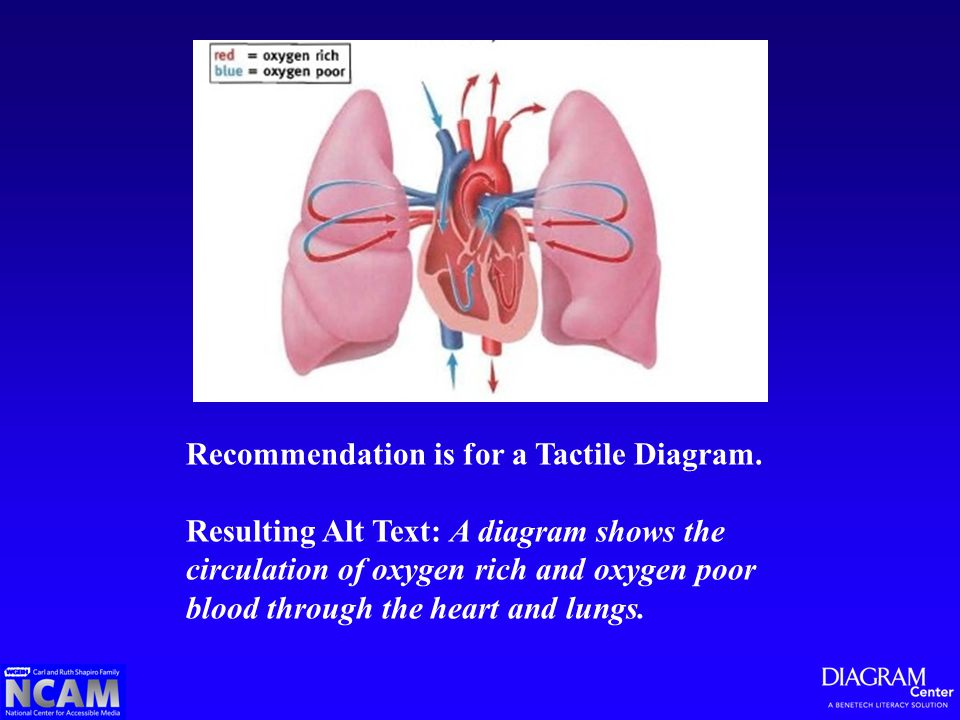 Recommendation is for a Tactile Diagram.