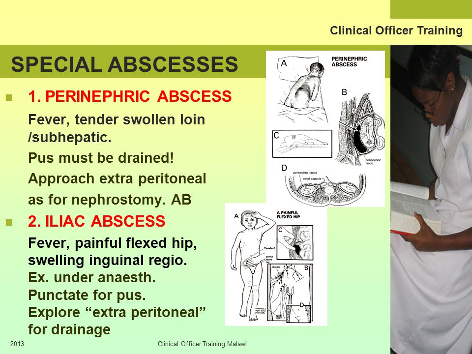 Clinical Officer Training 2013Clinical Officer Training Malawi SPECIAL ABSCESSES 1.