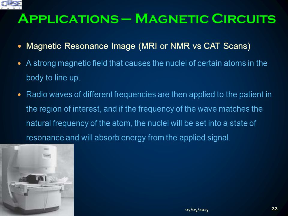 Magnetic Resonance Image (MRI or NMR vs CAT Scans) A strong magnetic field that causes the nuclei of certain atoms in the body to line up.