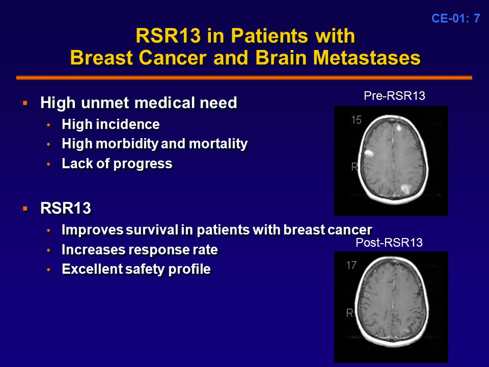CE-01: 7 RSR13 in Patients with Breast Cancer and Brain Metastases  High unmet medical need High incidence High morbidity and mortality Lack of progress  RSR13 Improves survival in patients with breast cancer Increases response rate Excellent safety profile  High unmet medical need High incidence High morbidity and mortality Lack of progress  RSR13 Improves survival in patients with breast cancer Increases response rate Excellent safety profile Pre-RSR13 Post-RSR13