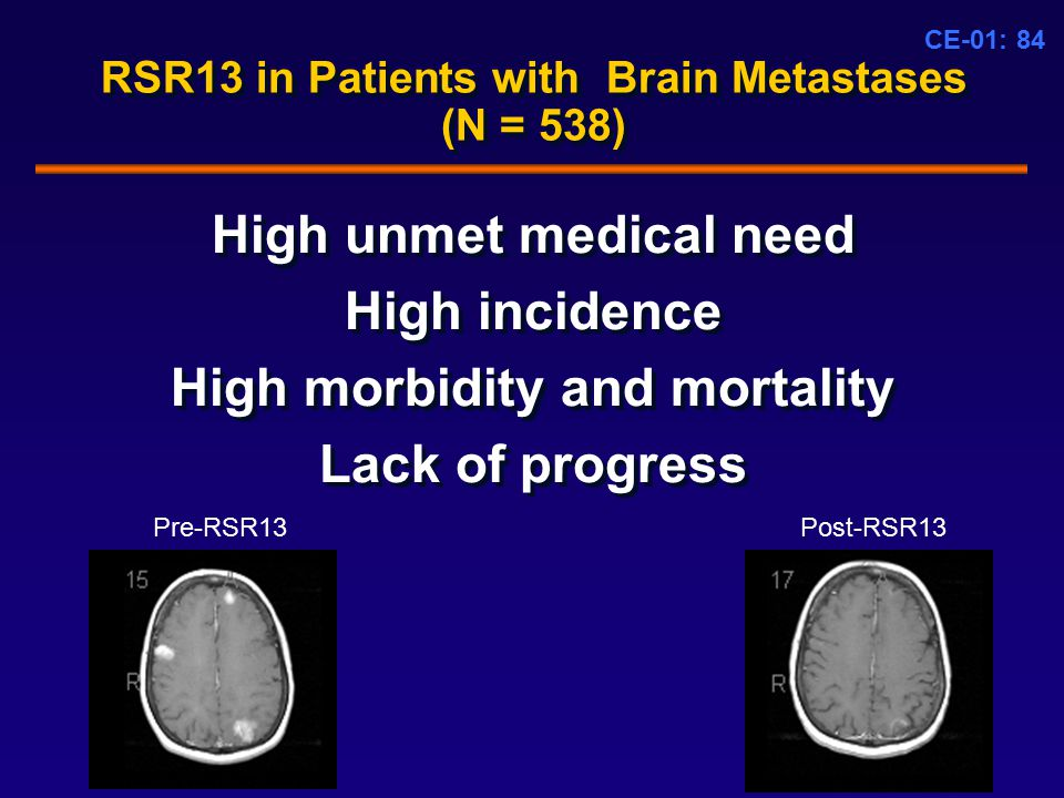 CE-01: 84 RSR13 in Patients with Brain Metastases (N = 538) High unmet medical need High incidence High morbidity and mortality Lack of progress High unmet medical need High incidence High morbidity and mortality Lack of progress Pre-RSR13Post-RSR13
