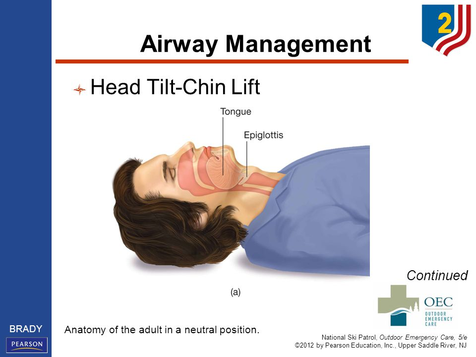 National Ski Patrol, Outdoor Emergency Care, 5/e ©2012 by Pearson Education, Inc., Upper Saddle River, NJ BRADY Airway Management Head Tilt-Chin Lift Continued Anatomy of the adult in a neutral position.