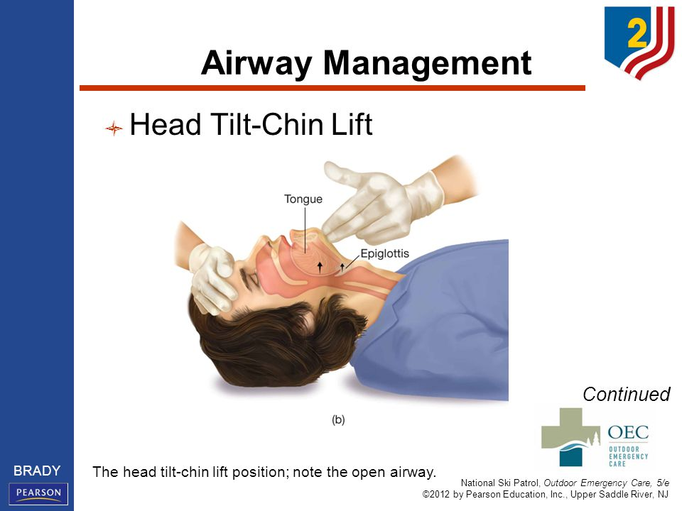 National Ski Patrol, Outdoor Emergency Care, 5/e ©2012 by Pearson Education, Inc., Upper Saddle River, NJ BRADY Airway Management Head Tilt-Chin Lift Continued The head tilt-chin lift position; note the open airway.