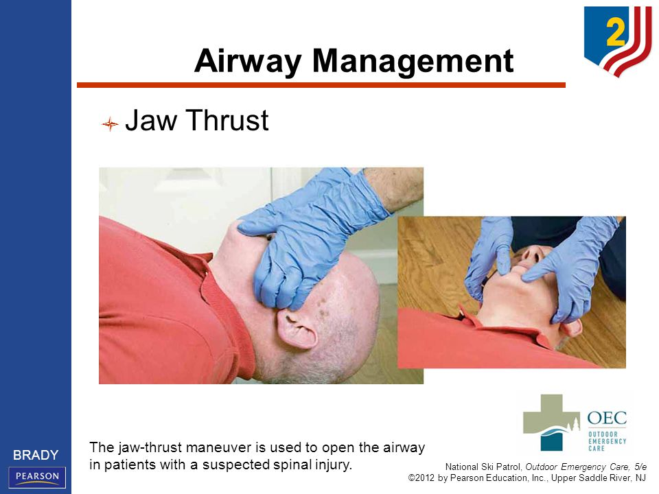 National Ski Patrol, Outdoor Emergency Care, 5/e ©2012 by Pearson Education, Inc., Upper Saddle River, NJ BRADY Airway Management Jaw Thrust The jaw-thrust maneuver is used to open the airway in patients with a suspected spinal injury.