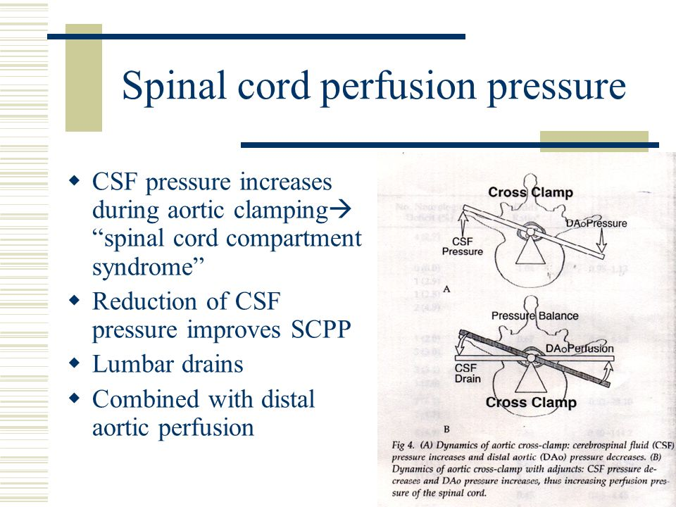 Spinal cord perfusion pressure  CSF pressure increases during aortic clamping  spinal cord compartment syndrome  Reduction of CSF pressure improves SCPP  Lumbar drains  Combined with distal aortic perfusion