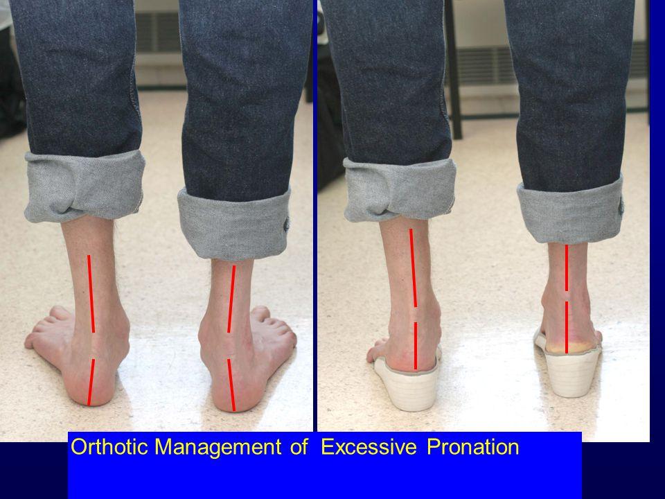 Orthotic Management of Excessive Pronation