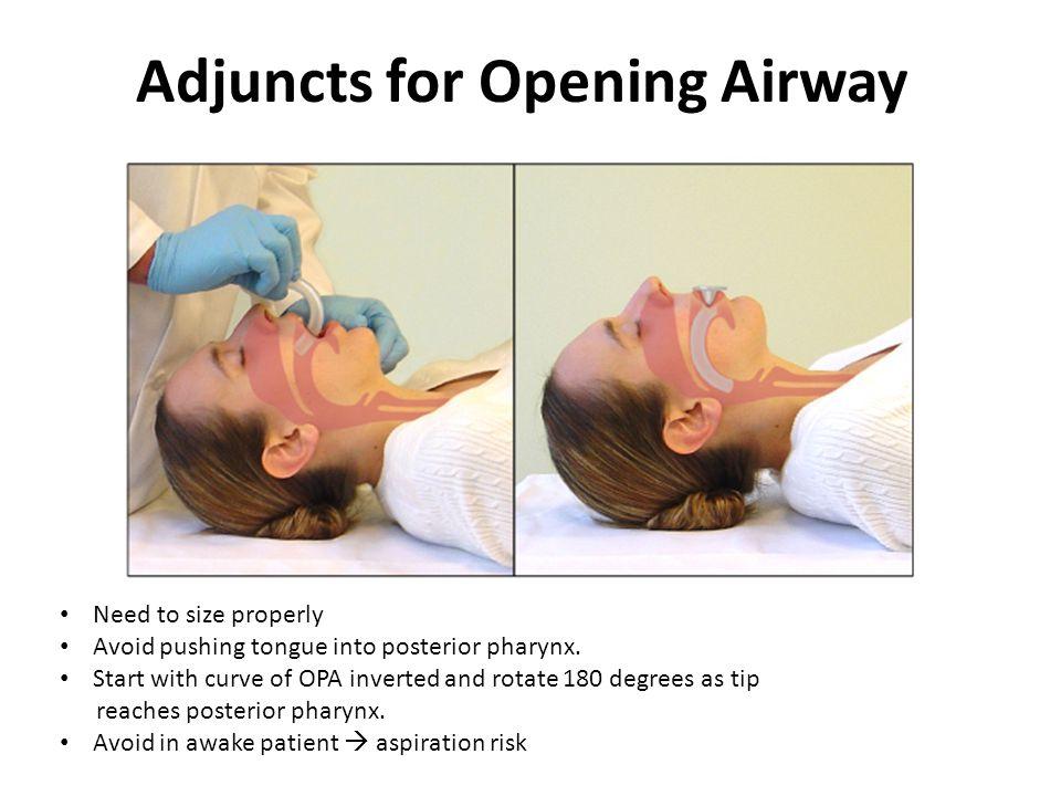 Adjuncts for Opening Airway Need to size properly Avoid pushing tongue into posterior pharynx.