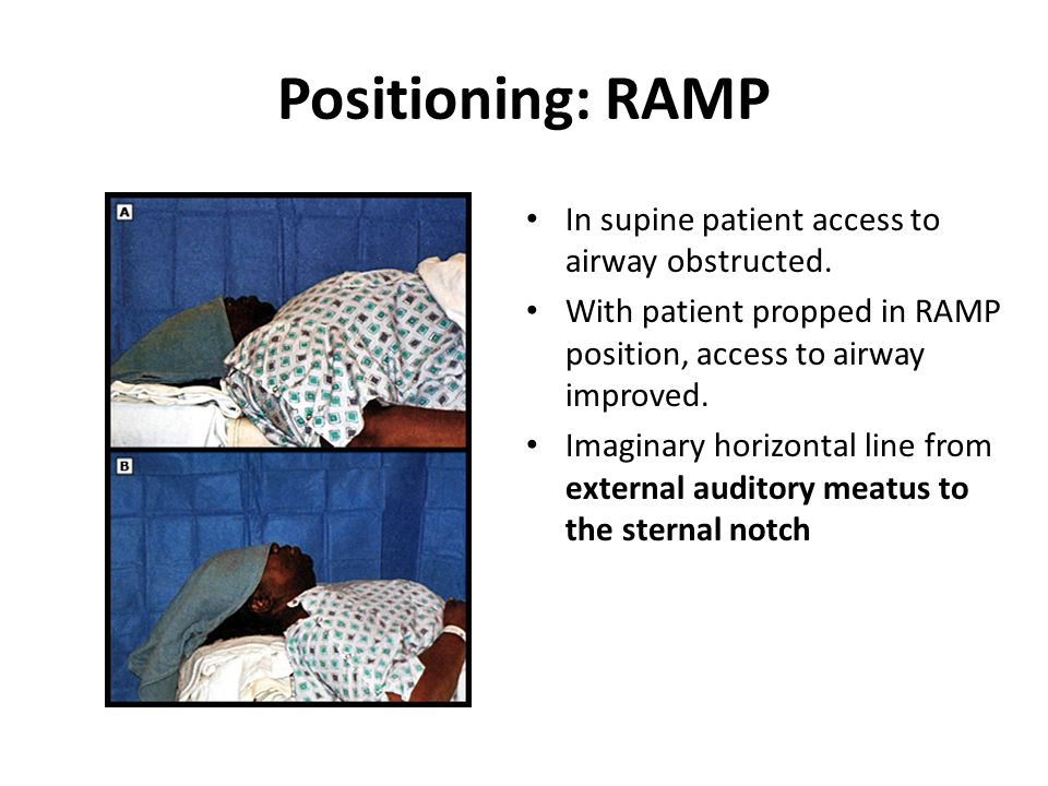 Positioning: RAMP In supine patient access to airway obstructed.
