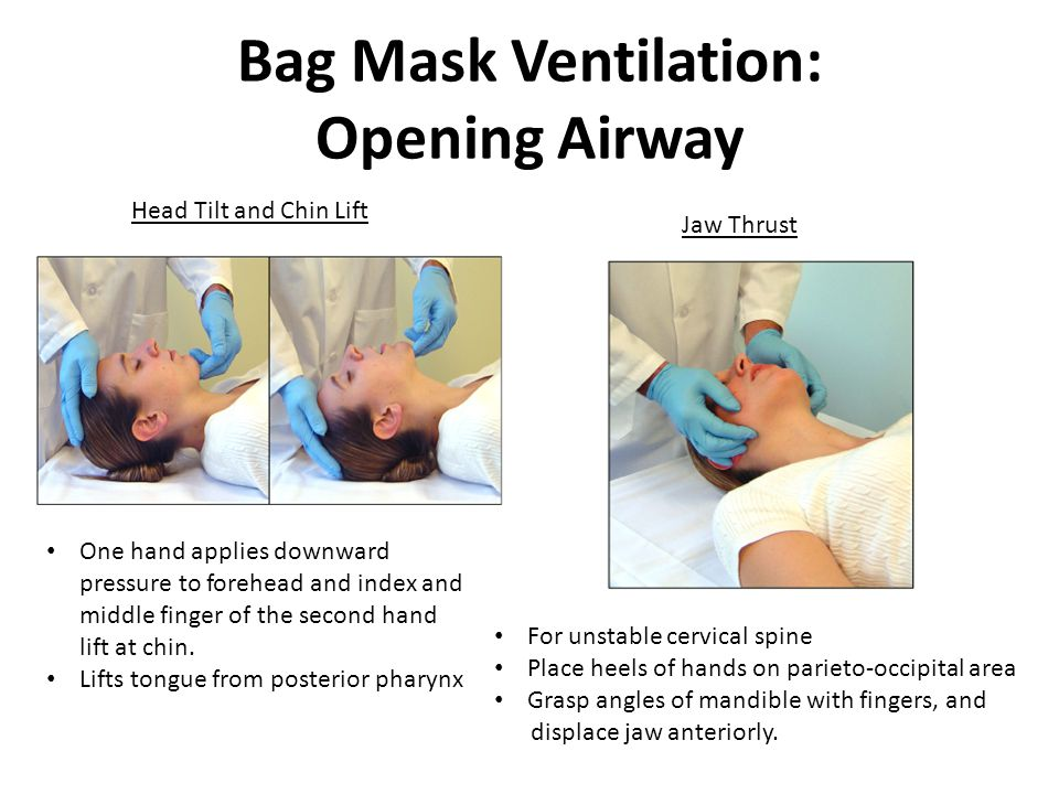 Bag Mask Ventilation: Opening Airway Head Tilt and Chin Lift Jaw Thrust One hand applies downward pressure to forehead and index and middle finger of the second hand lift at chin.