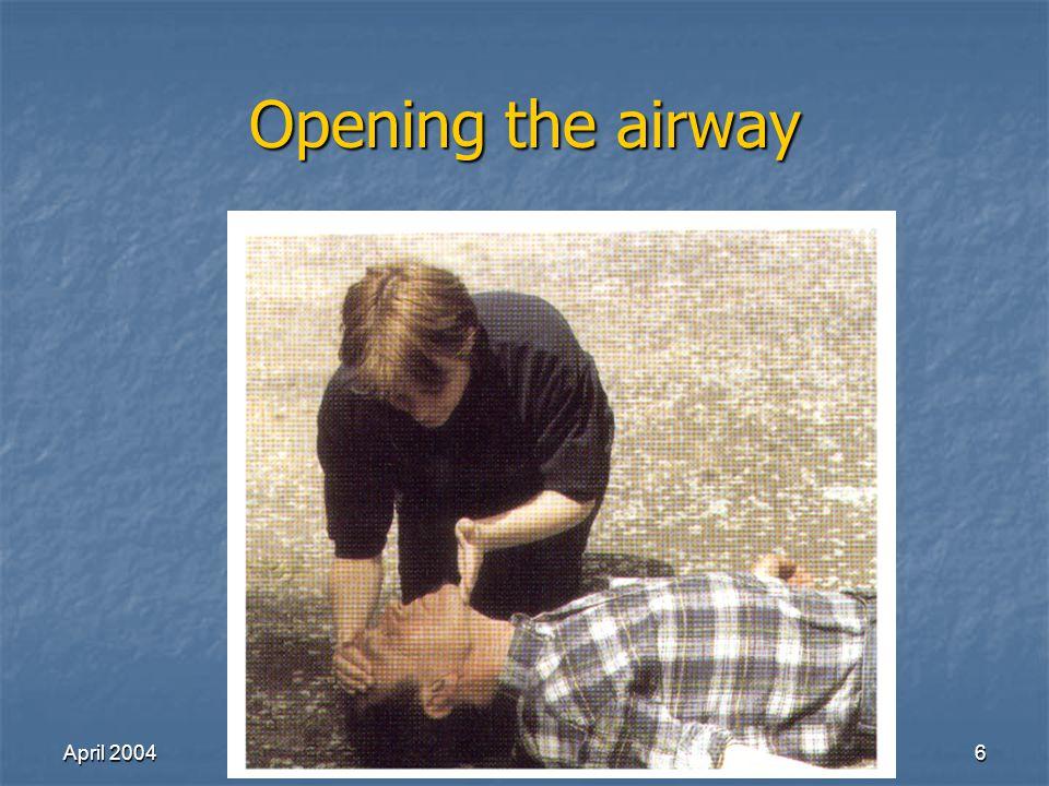 April 2004Richard Lake27 Nasotracheal intubation