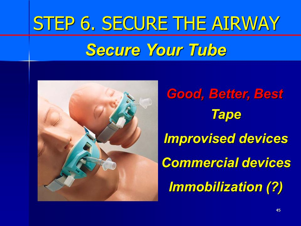 45 STEP 6. SECURE THE AIRWAY Tape Improvised devices Commercial devices Immobilization (?) Secure Your Tube Good, Better, Best