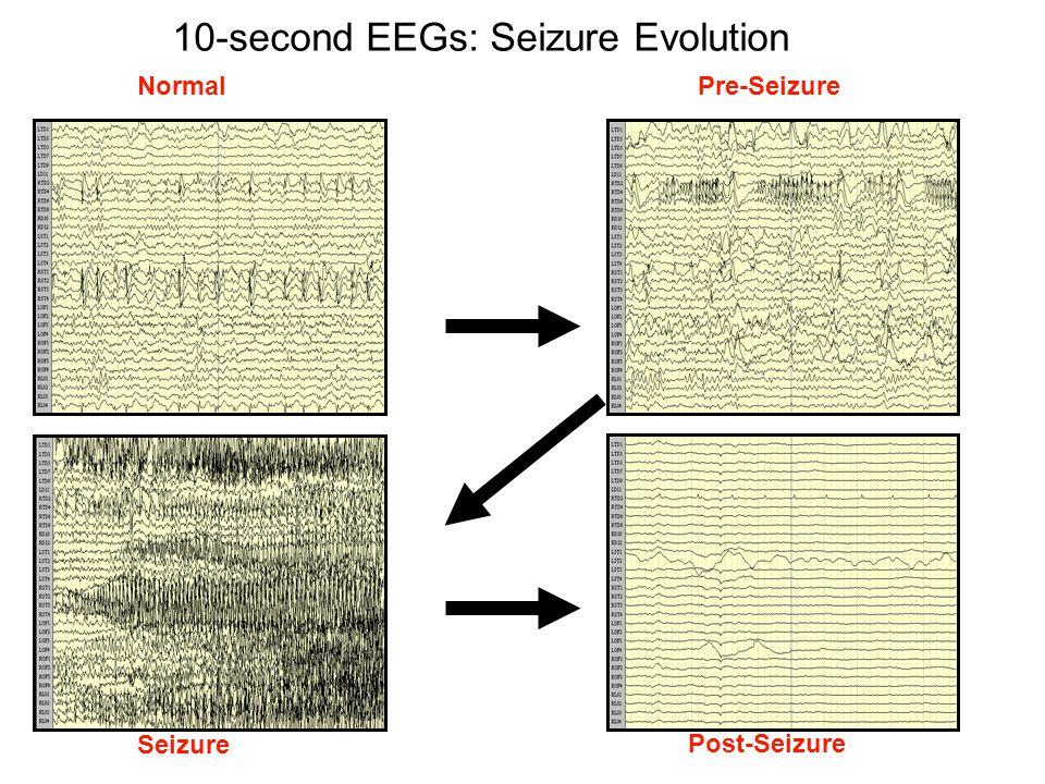 10-second EEGs: Seizure Evolution NormalPre-Seizure Seizure Post-Seizure