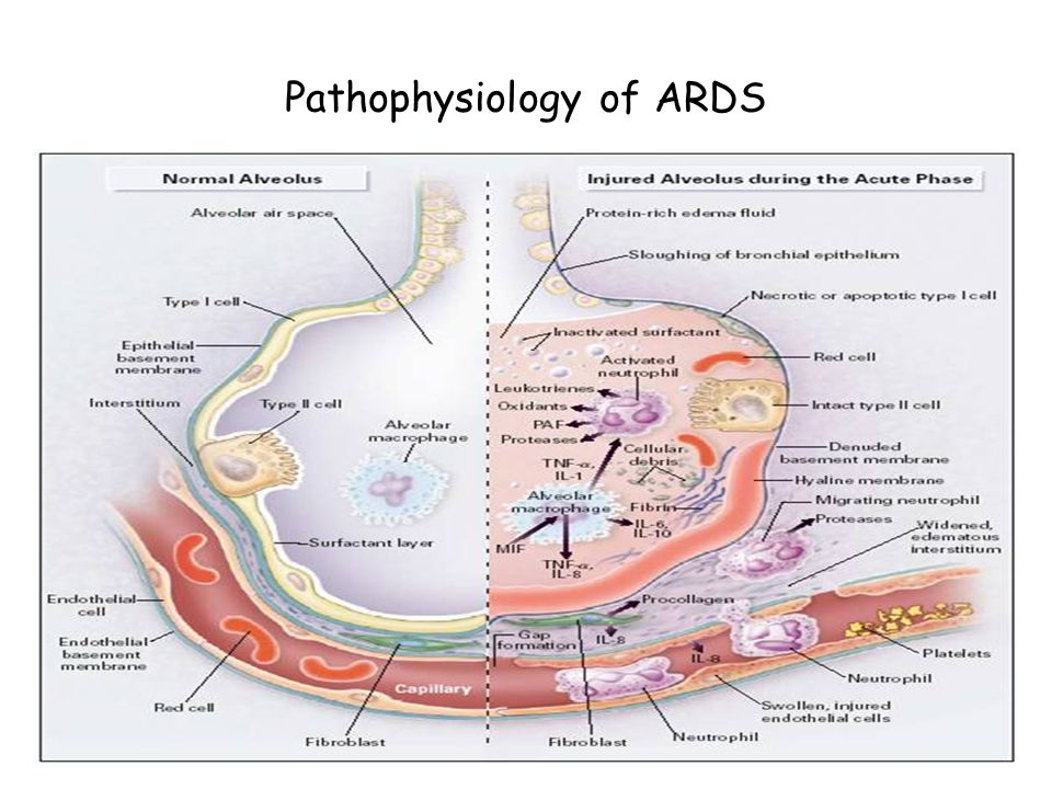 Pathophysiology of ARDS