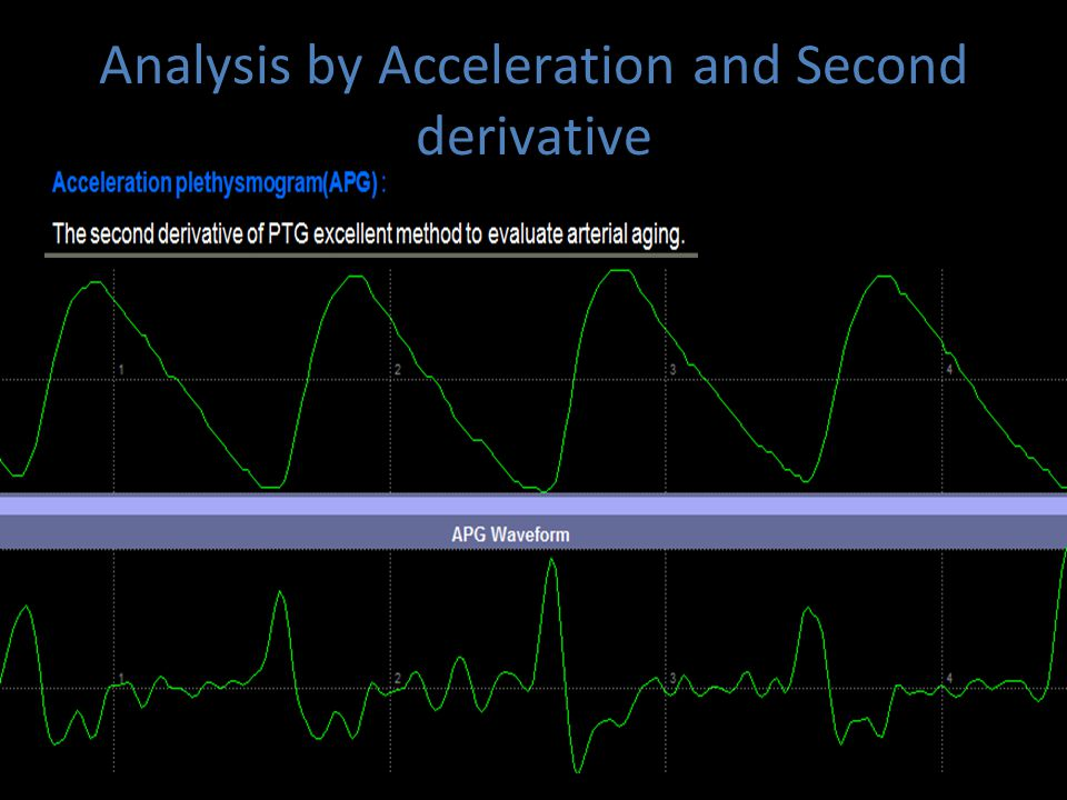 Analysis by Acceleration and Second derivative