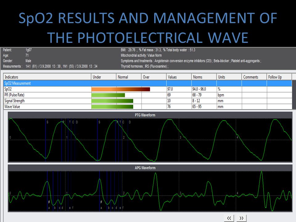 SpO2 RESULTS AND MANAGEMENT OF THE PHOTOELECTRICAL WAVE