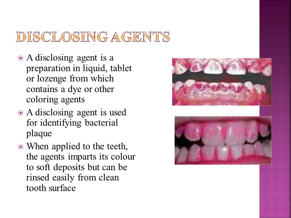  A disclosing agent is a preparation in liquid, tablet or lozenge from which contains a dye or other coloring agents  A disclosing agent is used for identifying bacterial plaque  When applied to the teeth, the agents imparts its colour to soft deposits but can be rinsed easily from clean tooth surface