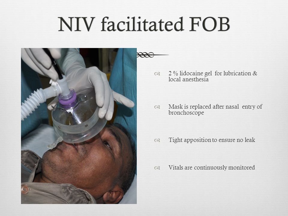 NIV facilitated FOBNIV facilitated FOB  2 % lidocaine gel for lubrication & local anesthesia  Mask is replaced after nasal entry of bronchoscope  T