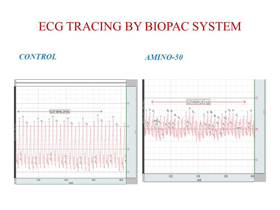 ECG TRACING BY BIOPAC SYSTEM CONTROL AMINO-50
