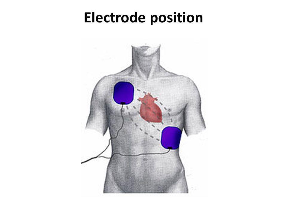 Electrode position