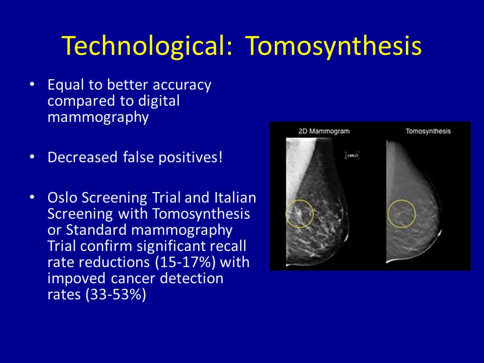 Technological: Tomosynthesis Equal to better accuracy compared to digital mammography Decreased false positives.