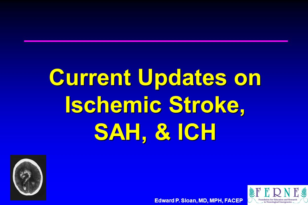 Edward P. Sloan, MD, MPH, FACEP Current Updates on Ischemic Stroke, SAH, & ICH