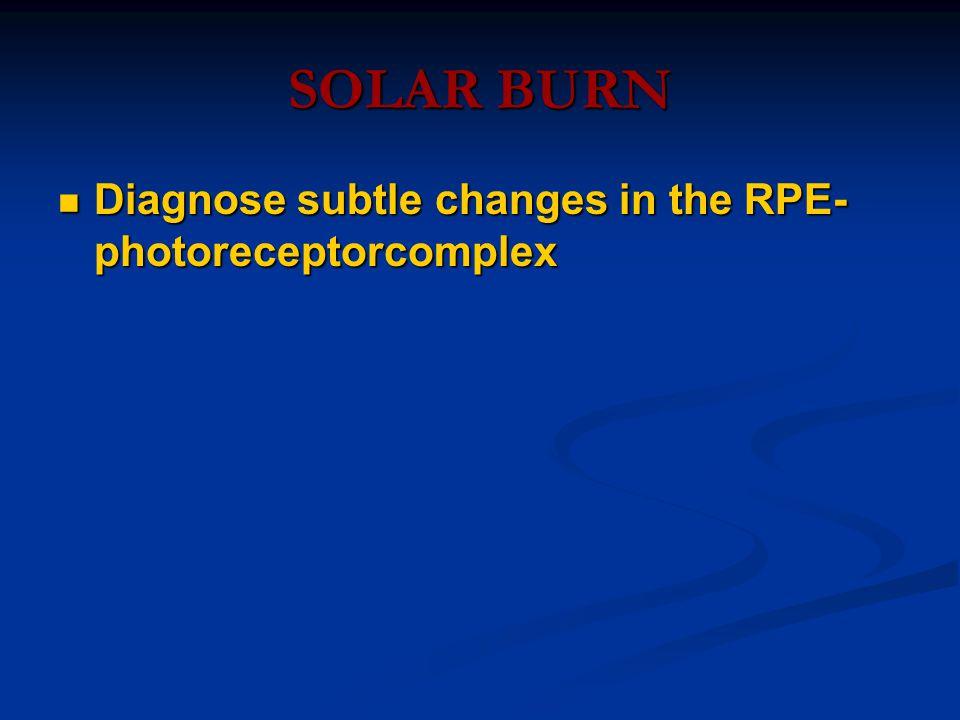 SOLAR BURN Diagnose subtle changes in the RPE- photoreceptorcomplex Diagnose subtle changes in the RPE- photoreceptorcomplex