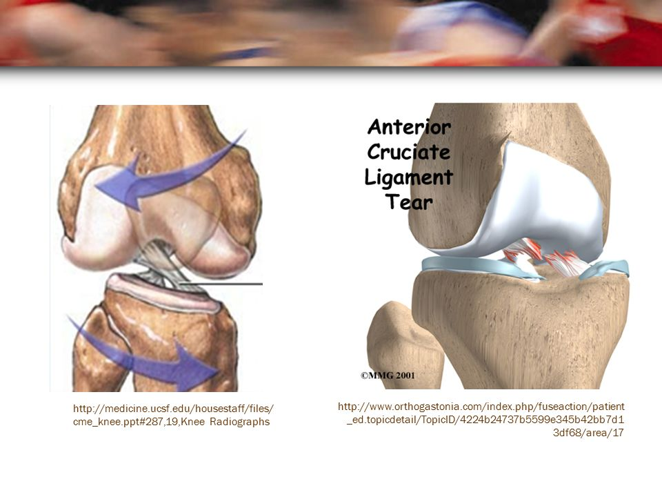 http://www.orthogastonia.com/index.php/fuseaction/patient _ed.topicdetail/TopicID/4224b24737b5599e345b42bb7d1 3df68/area/17 http://medicine.ucsf.edu/housestaff/files/ cme_knee.ppt#287,19,Knee Radiographs
