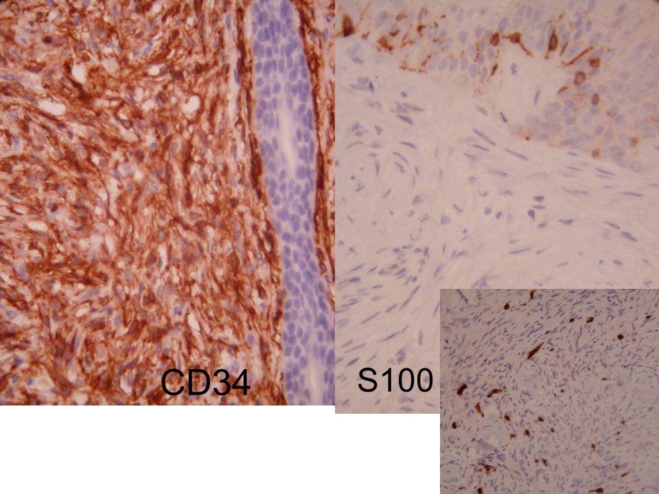 CD34 S100