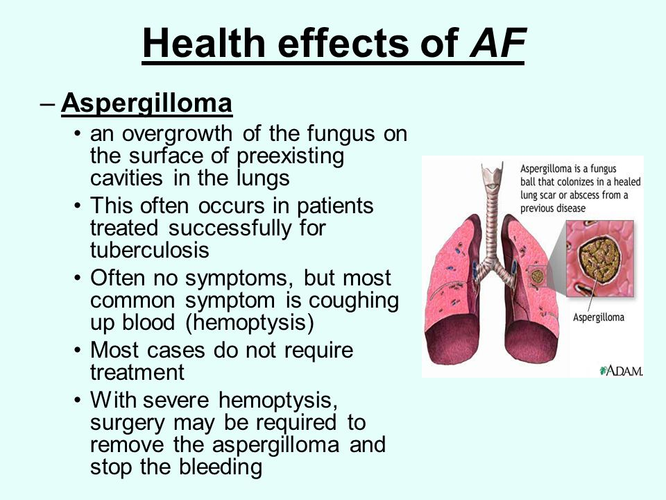 Health effects of AF –Aspergilloma an overgrowth of the fungus on the surface of preexisting cavities in the lungs This often occurs in patients treated successfully for tuberculosis Often no symptoms, but most common symptom is coughing up blood (hemoptysis) Most cases do not require treatment With severe hemoptysis, surgery may be required to remove the aspergilloma and stop the bleeding