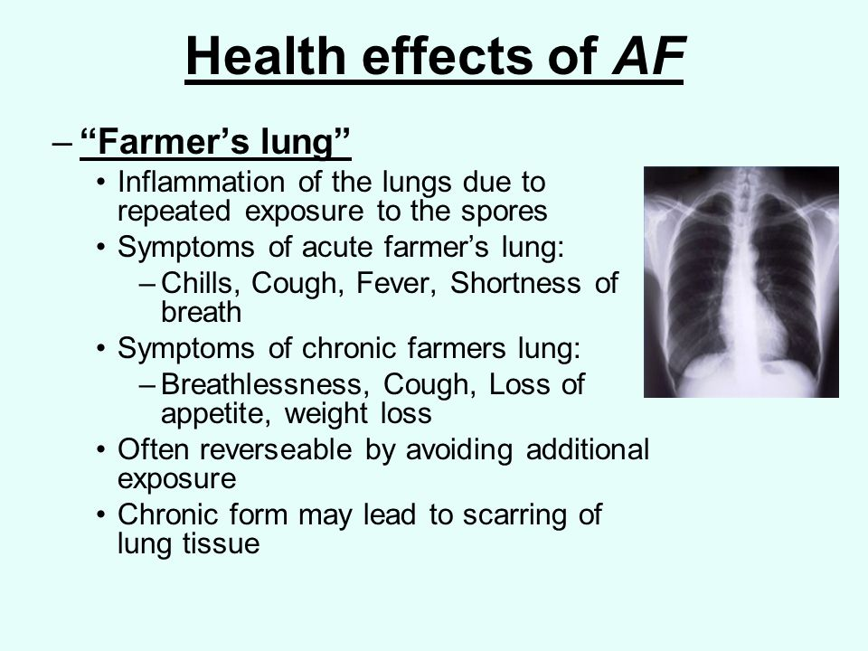 Health effects of AF – Farmer's lung Inflammation of the lungs due to repeated exposure to the spores Symptoms of acute farmer's lung: –Chills, Cough, Fever, Shortness of breath Symptoms of chronic farmers lung: –Breathlessness, Cough, Loss of appetite, weight loss Often reverseable by avoiding additional exposure Chronic form may lead to scarring of lung tissue