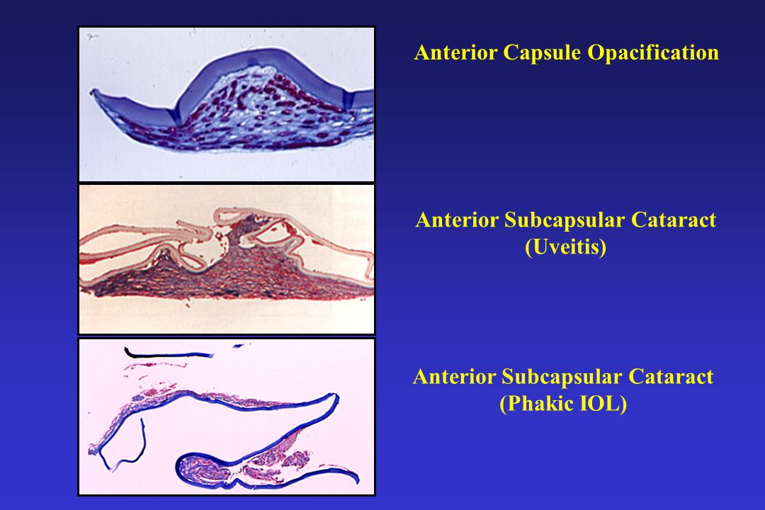 Anterior Capsule Opacification Anterior Subcapsular Cataract (Uveitis) Anterior Subcapsular Cataract (Phakic IOL)