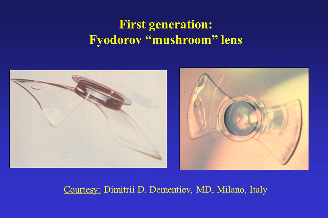 First generation: Fyodorov mushroom lens Courtesy: Dimitrii D. Dementiev, MD, Milano, Italy