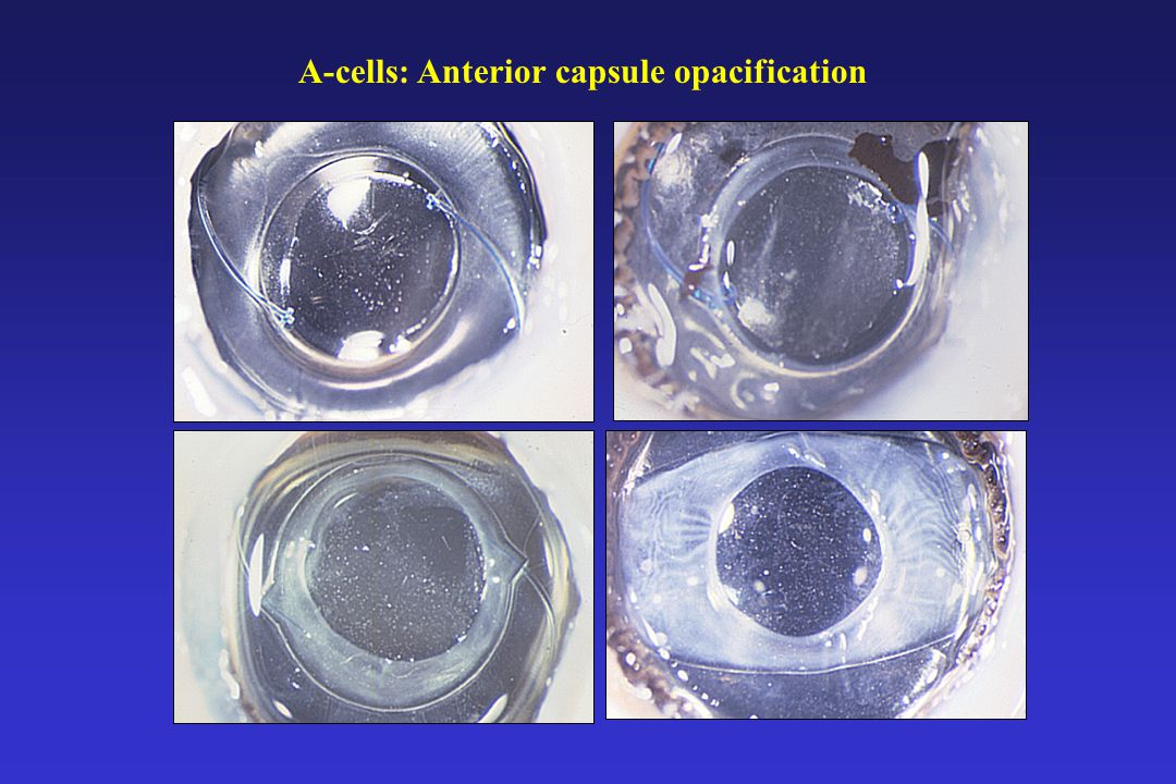 A-cells: Capsule contraction syndrome