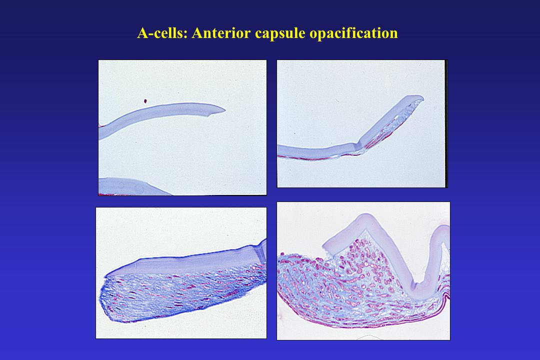 A-cells: Anterior capsule opacification