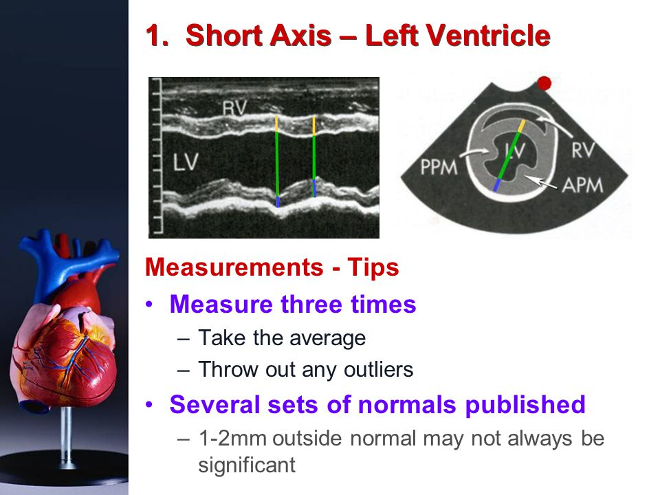1. Short Axis – Left Ventricle Measurements - Tips Measure three times –Take the average –Throw out any outliers Several sets of normals published –1-