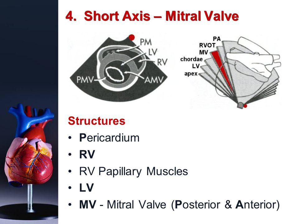 4. Short Axis – Mitral Valve Structures Pericardium RV RV Papillary Muscles LV MV - Mitral Valve (Posterior & Anterior)